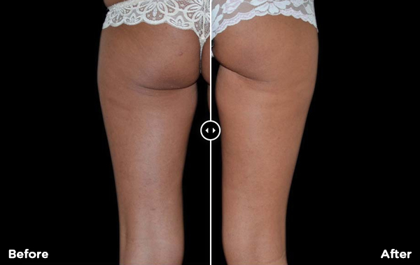 Body and Skin Clinic Exilis skin tightening treatments