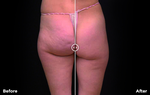 Body and Skin Clinic x wave cellulite treatments