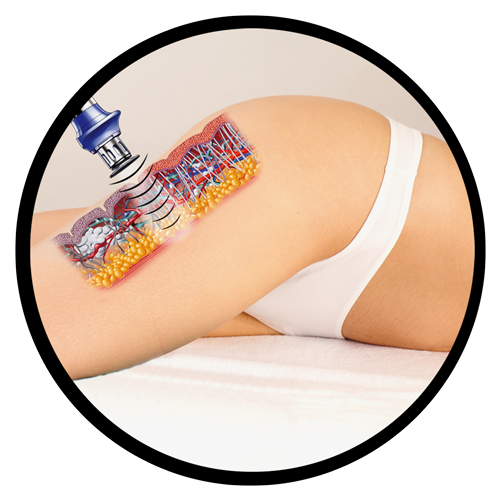 Body and Skin Clinic cellulite treatment packages
