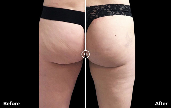 Body and Skin Clinic Emsculpt treatment