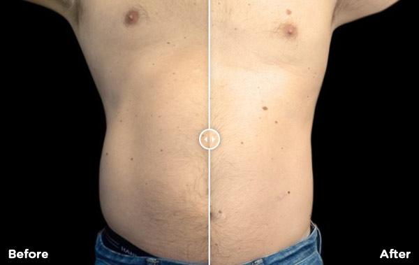 Body and Skin Clinic Emsculpt fat burning treatment