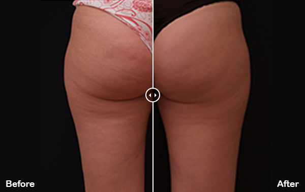 Body and Skin Clinic x wave fat reduction treatments