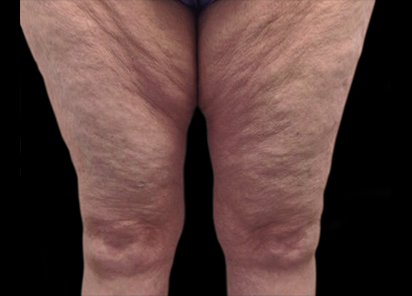 Body and Clinic Before XWave Treatment