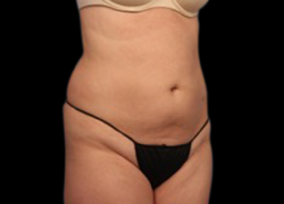 Body and Skin Clinic after vanquish treatment