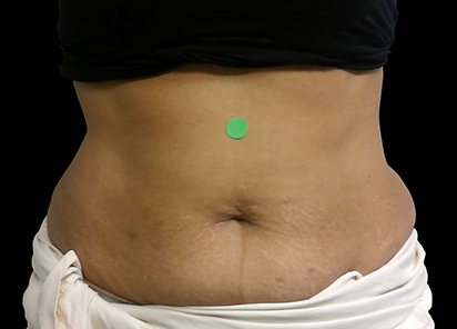 Body and Clinic After 4th XWave Treatment