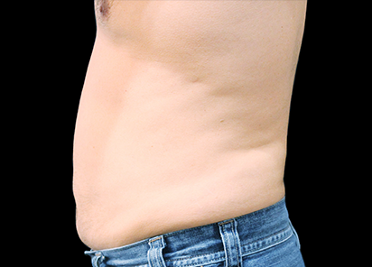 Body and Skin Clinic after vanquish 4th treatment