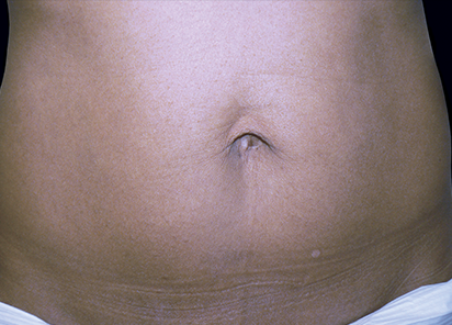 body and skin clinic - after exilis treatment