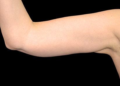 body and skin clinic - after exilis treatment on arms